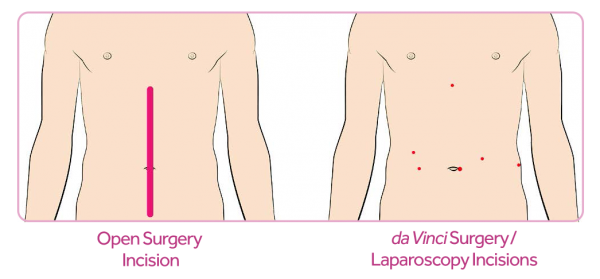 Da Vinci surgery for heartburn uses a few small entry points rather than one large incision.
