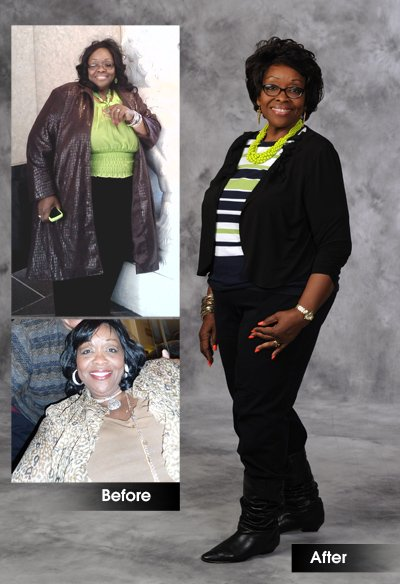 Vivian Foster before and after