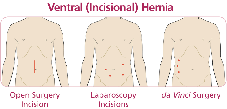 Comparison of incisions for open, laparoscopic, and da Vinci surgery for ventral hernia
