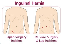 da Vinci surgery for inguinal hernia uses a few mall entry points rather than one long incision