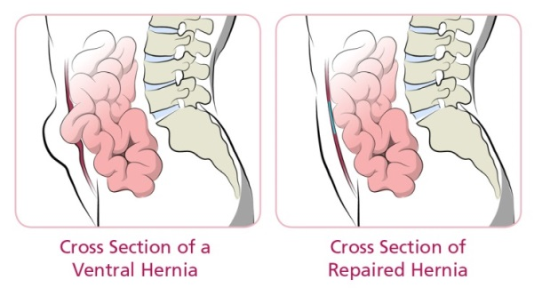 Ventral hernia and repaired hernia