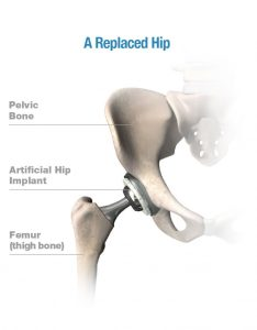 Healthy Replaced Hip